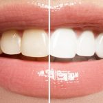 Cosmetic Dentistry Is Economical for You
